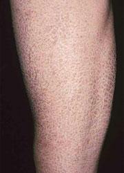 魚鱗癬の足